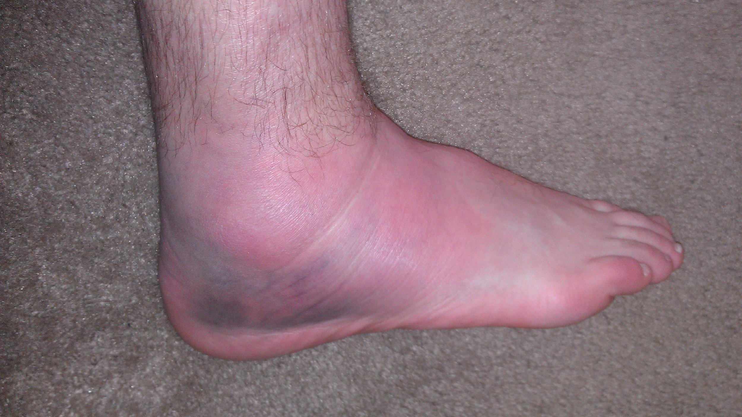 My super swollen ankle after a trail in Moab swept my leg, hard. Gross. If your knee looked like this you wouldn't be expecting to get back to sport in two weeks. Why assume that is ok for the ankle?
