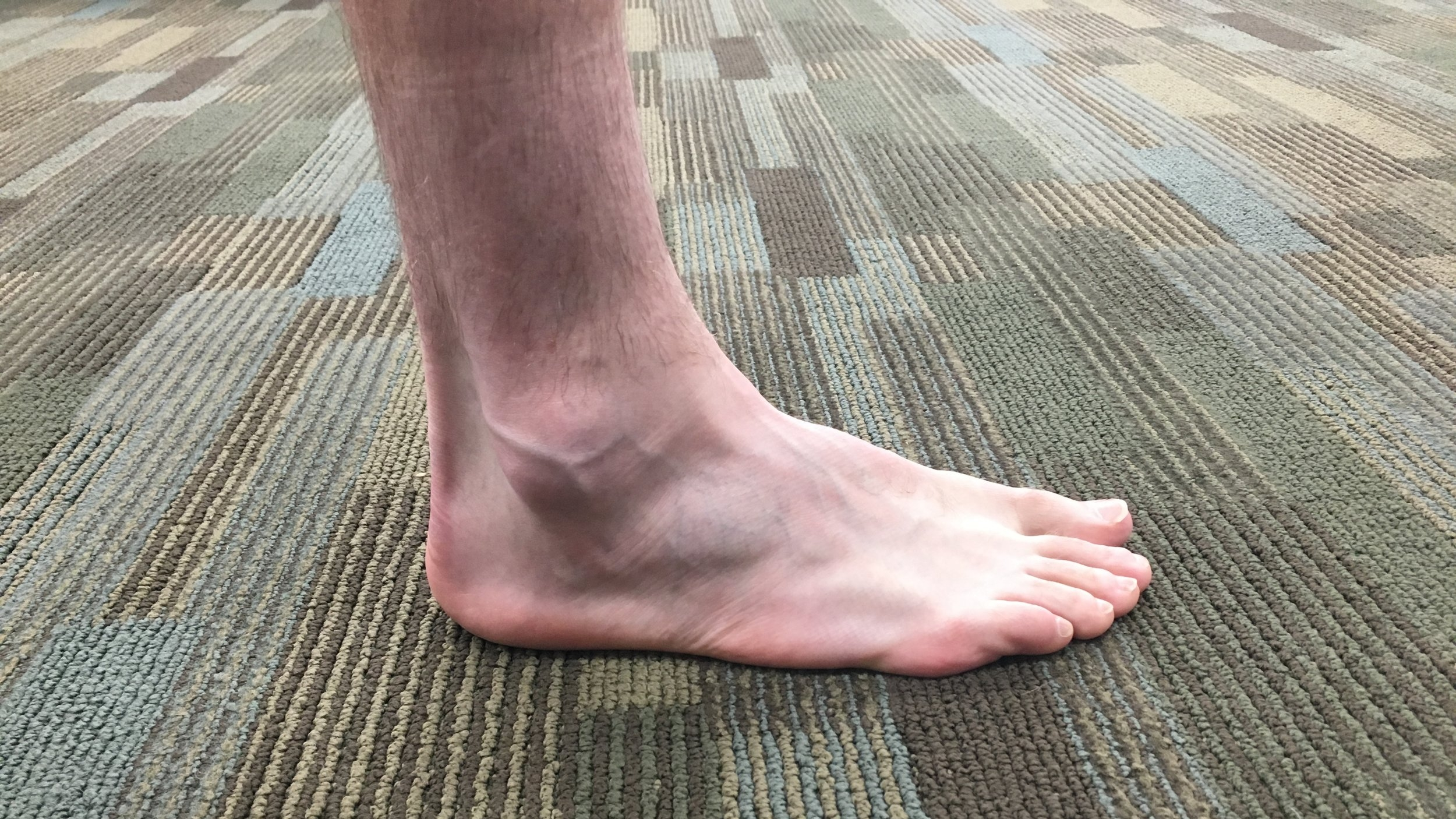 My standard foot and ankle modeling look, decent.