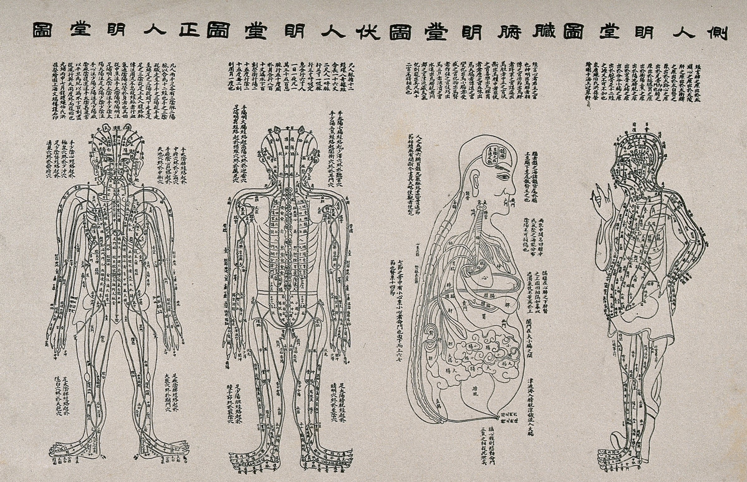 Acupuncture_figures_Wellcome_V0018479.jpg
