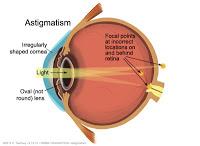 astigmatism125.jpg