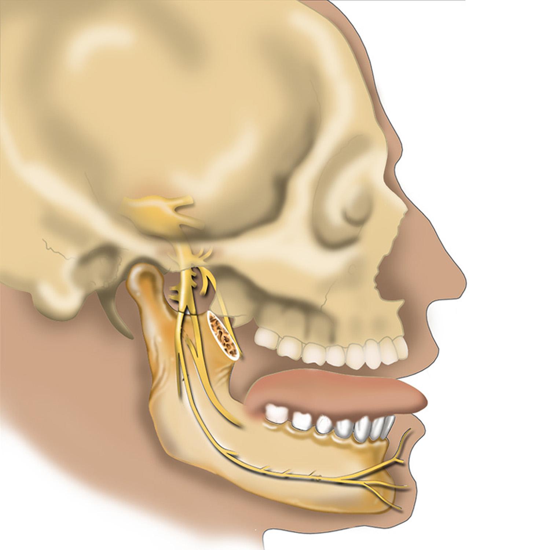nervetrigeminal1500.jpg
