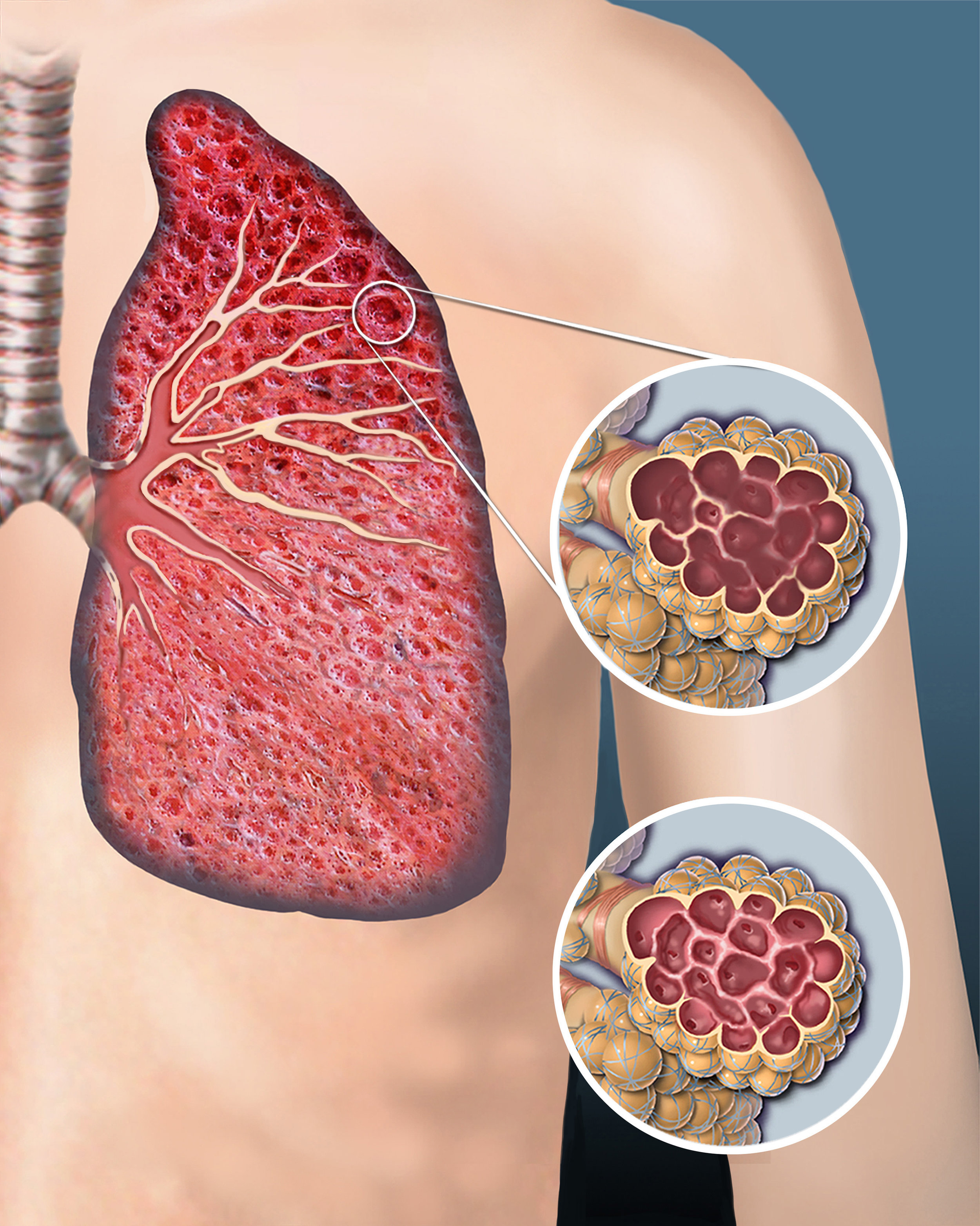 COPDemph1500.jpg