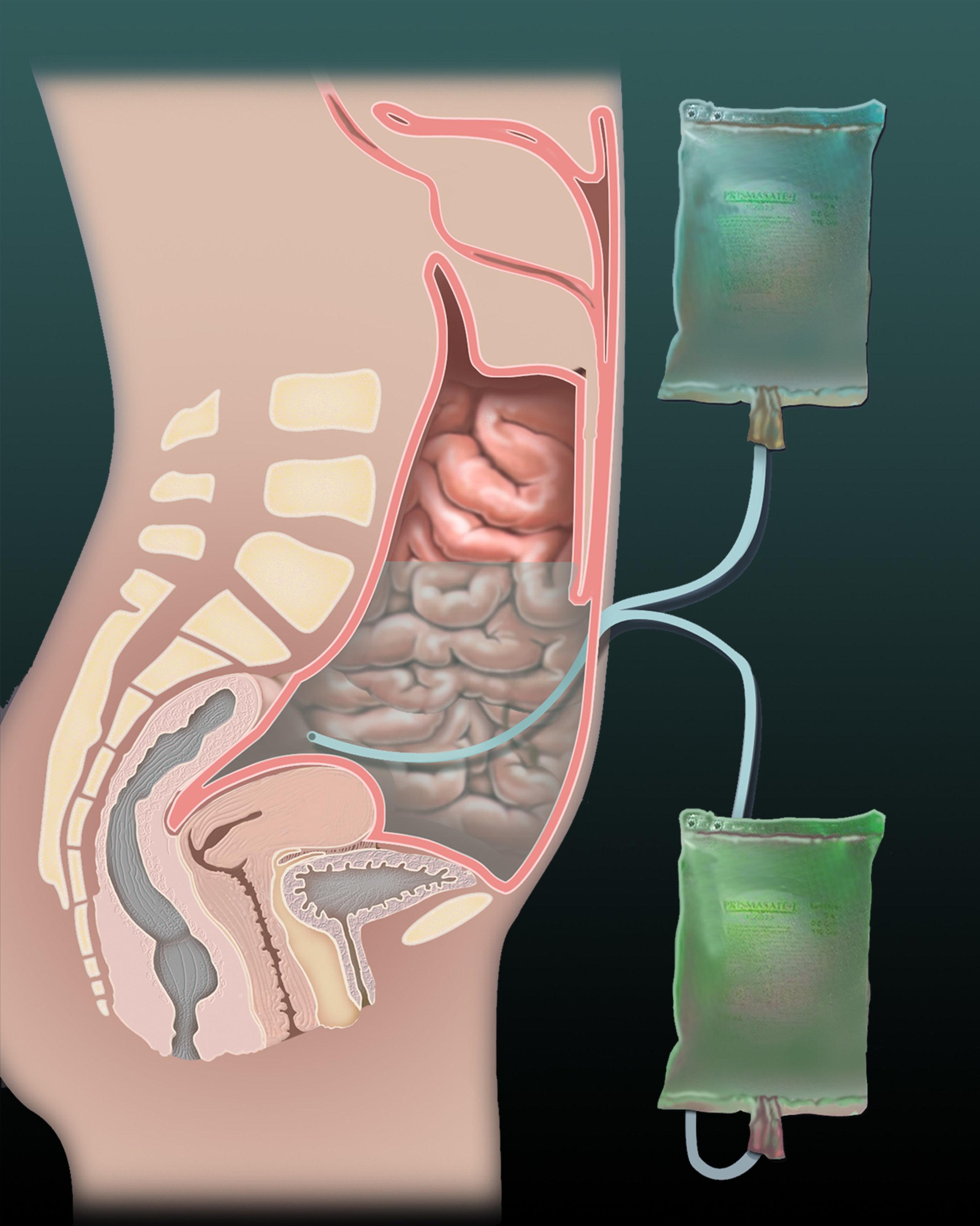peritonealdialysis1500.jpg