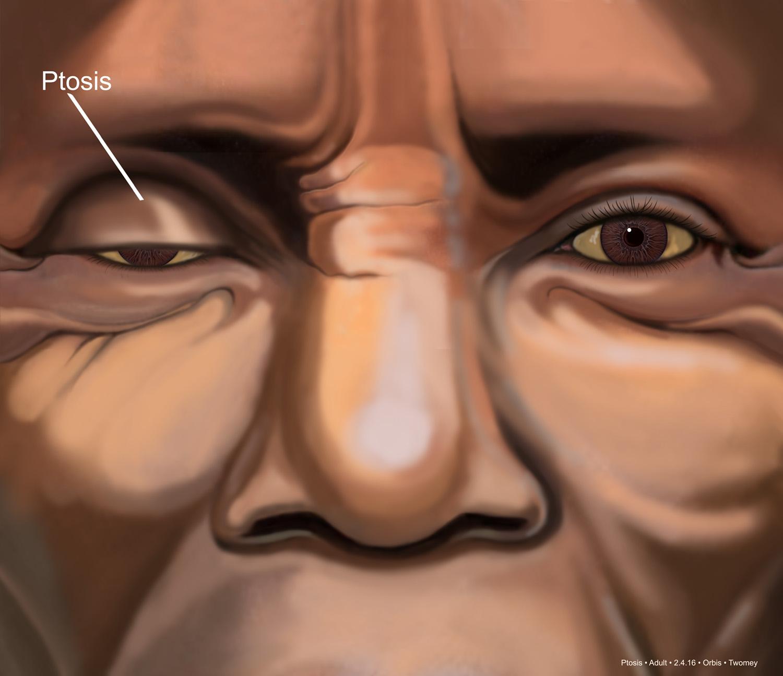 adulteyesptosis1500.jpg