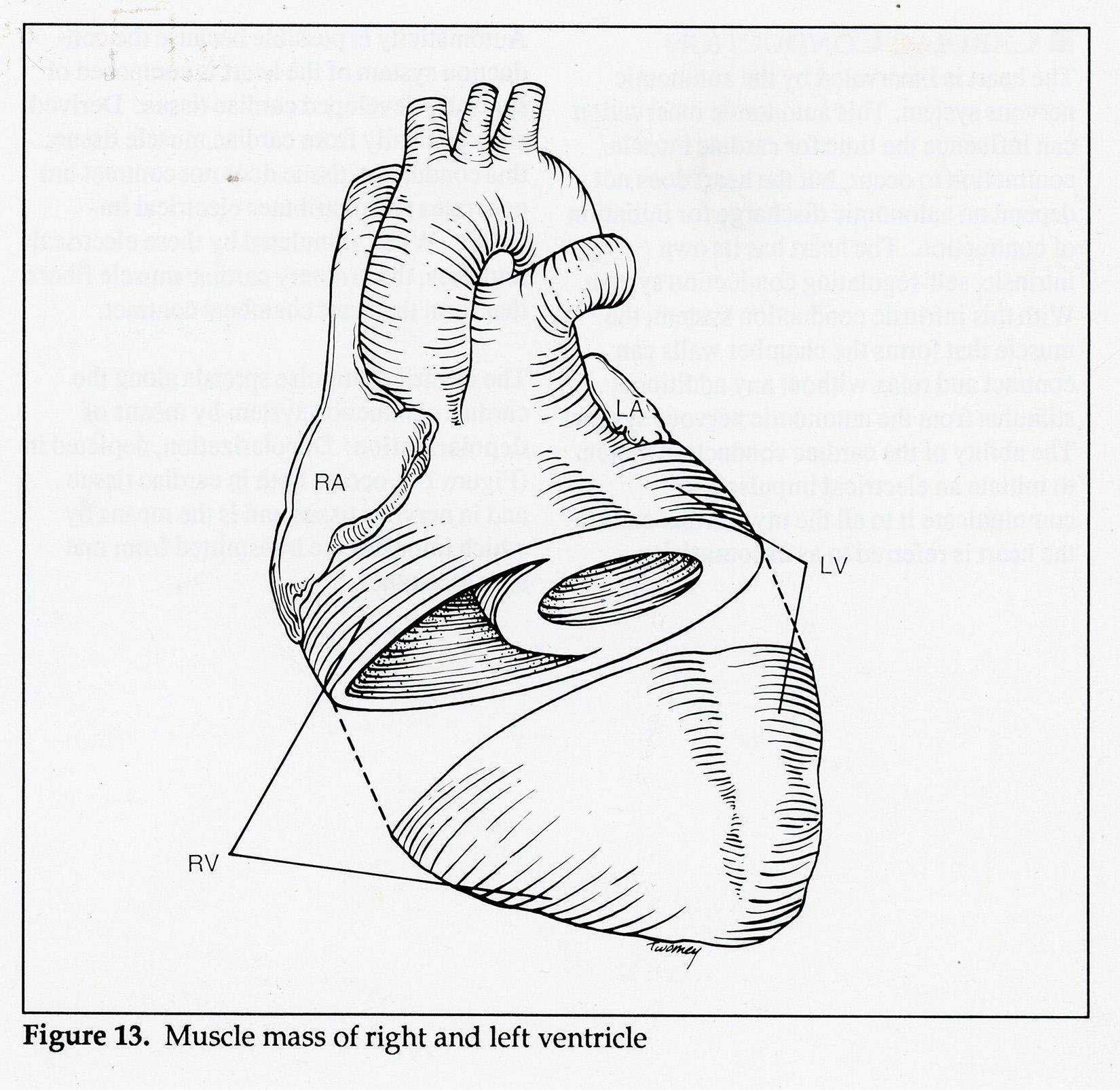 Abbottcardiac1500.jpg