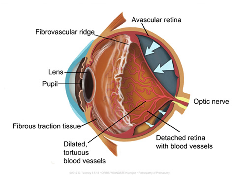 retinoppremat1500.jpg