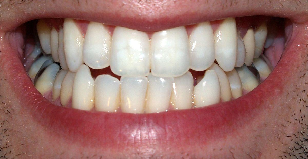Teeth_by_David_Shankbone.jpg