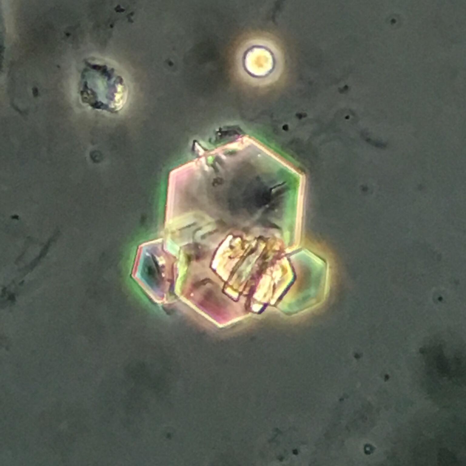 Cystine crystal 15 swissnephro Florian Buchkremer
