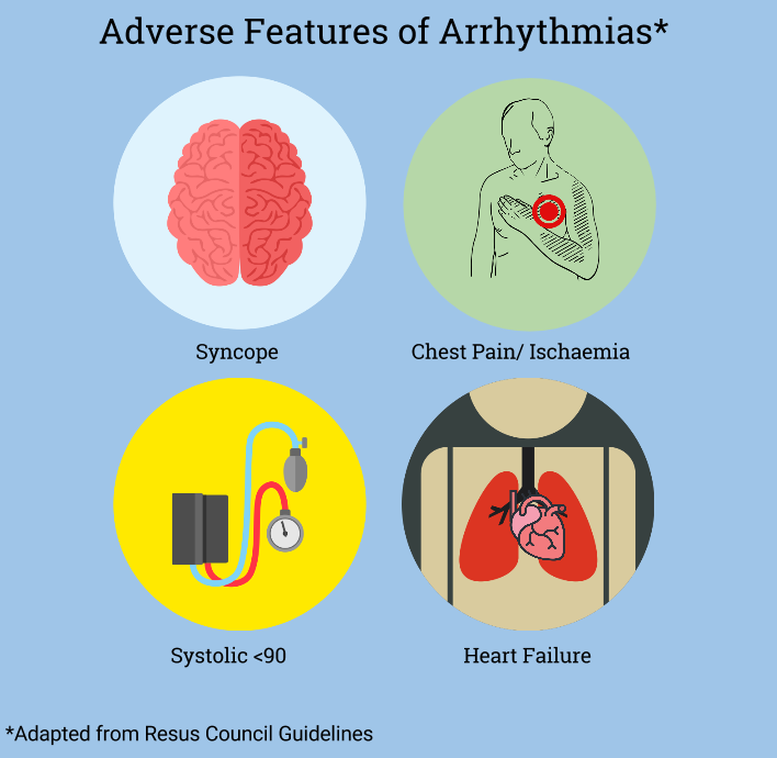 Adverse Features of Arrythmia (1).png