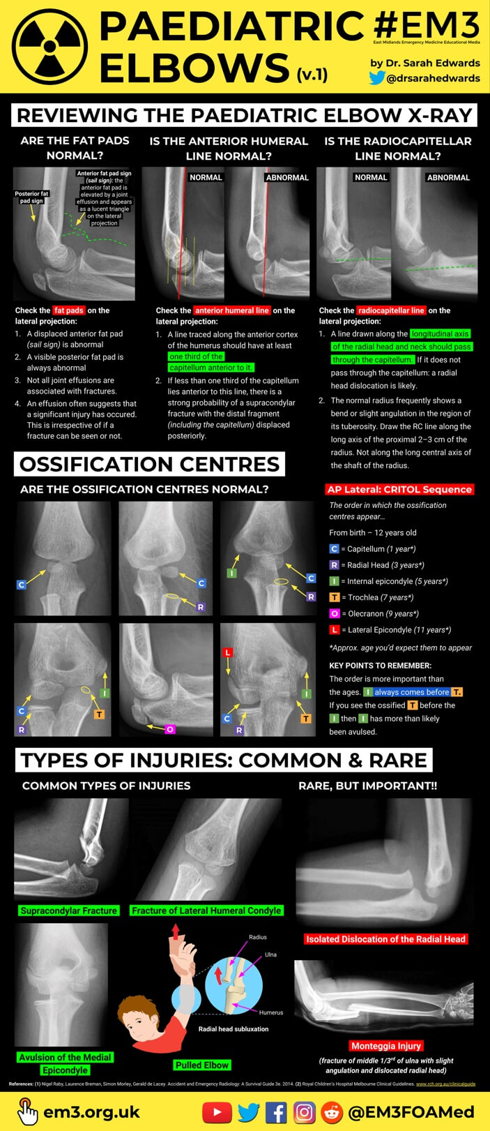 Paediatric Elbow Injuries v.1 (thumbnail).jpg