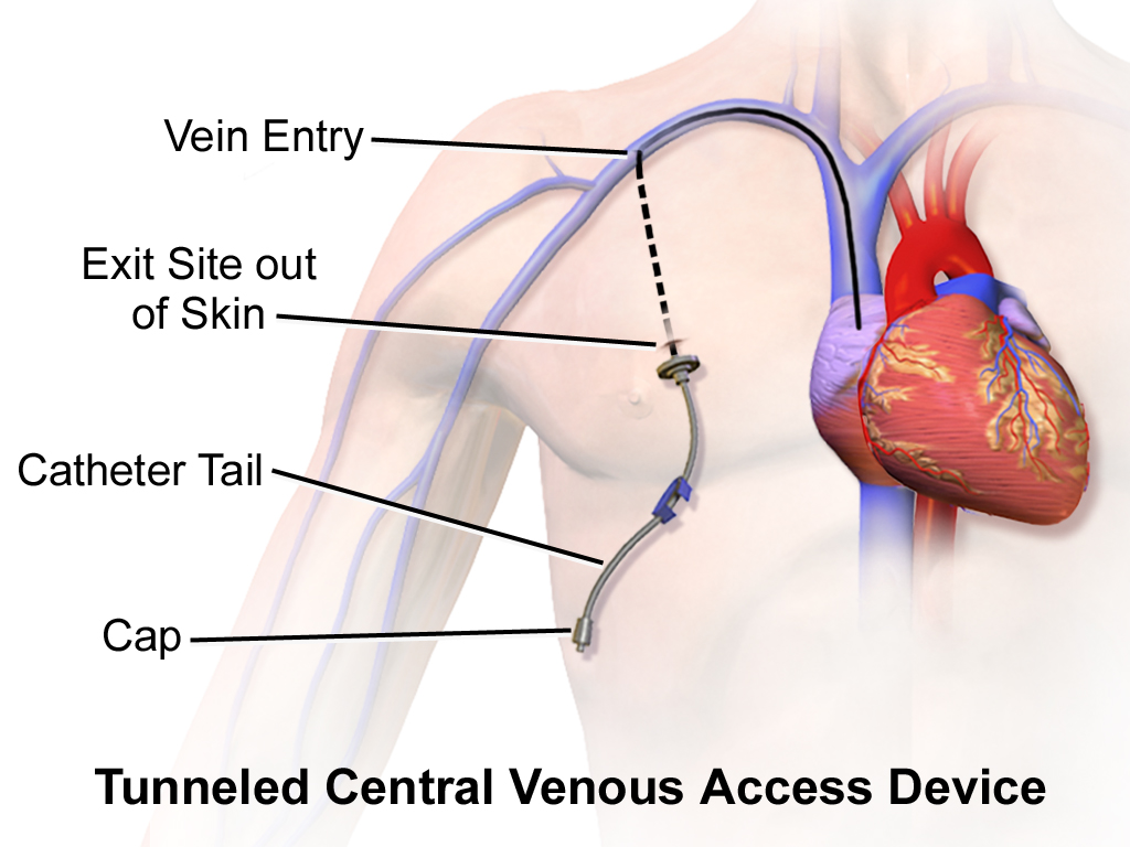 Central Venous Access Device (Tunneled).png