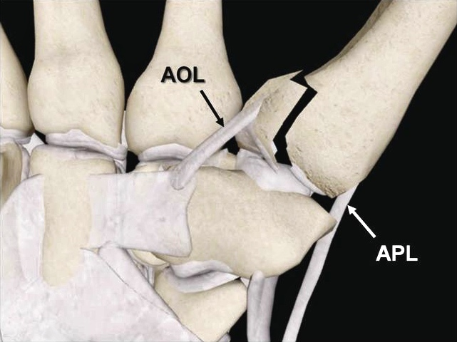 Anterior Oblique Ligament Thumb (xray).jpg