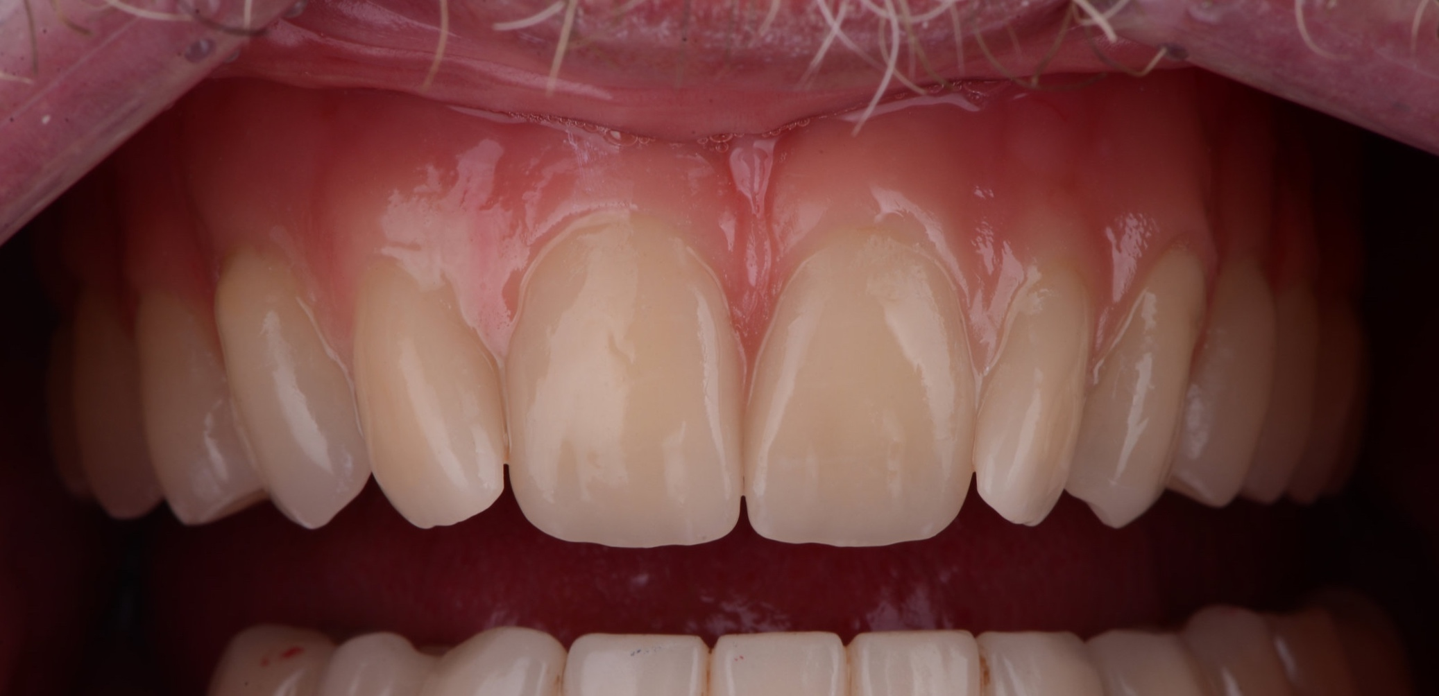 Intra Oral Photo From the Above Patient