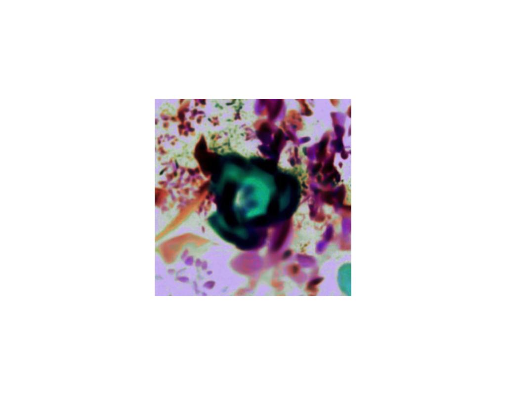 Acid Poppy, X-ray