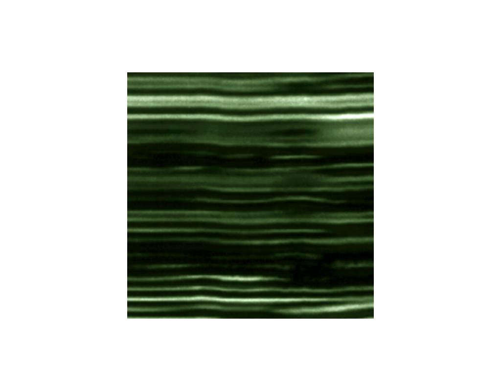 Portrait of Ezra (heartbeat), Ultrasound