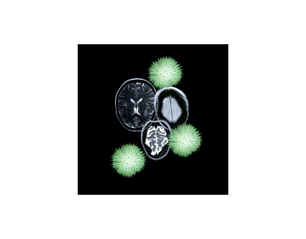 Woven Green Dream, brain MRI & Datura (detail)