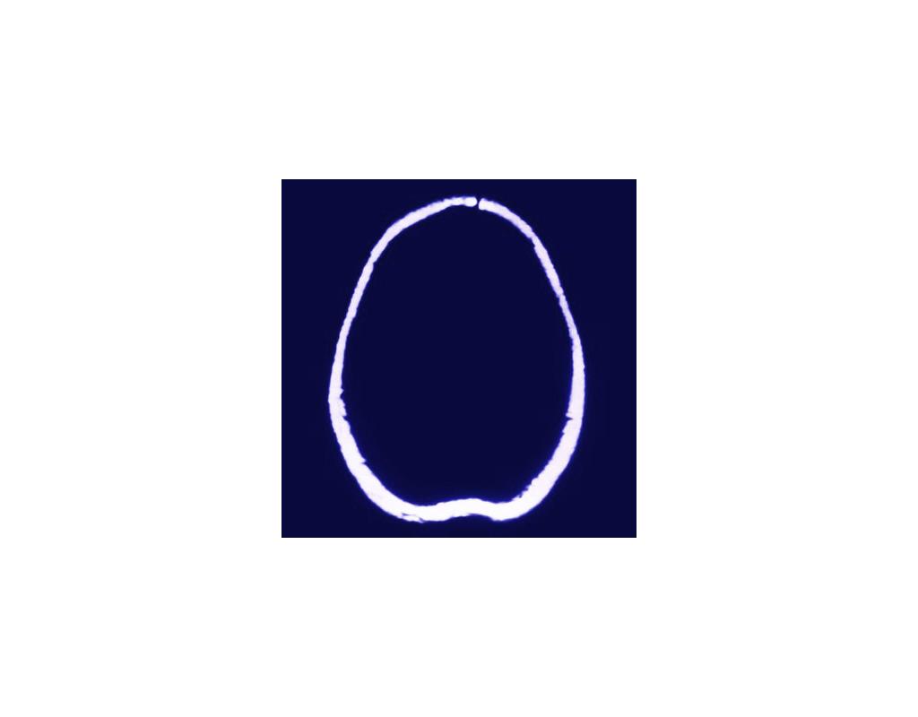 Matter #1, brain MRI