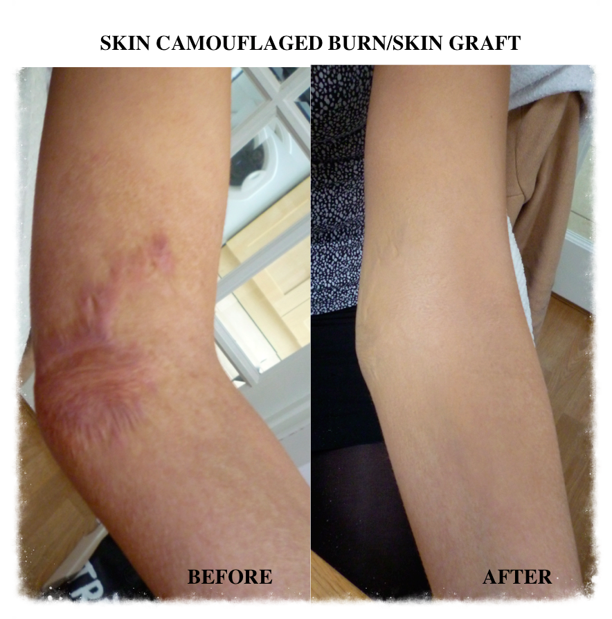 Skin Camouflage Personal Injury Claim