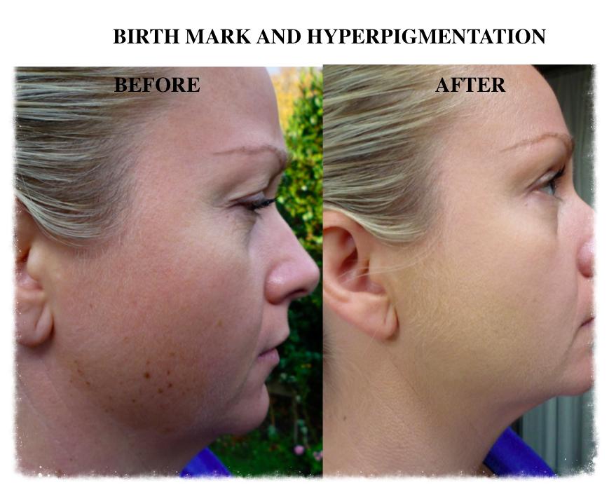 Skin Camouflage facial birthmark
