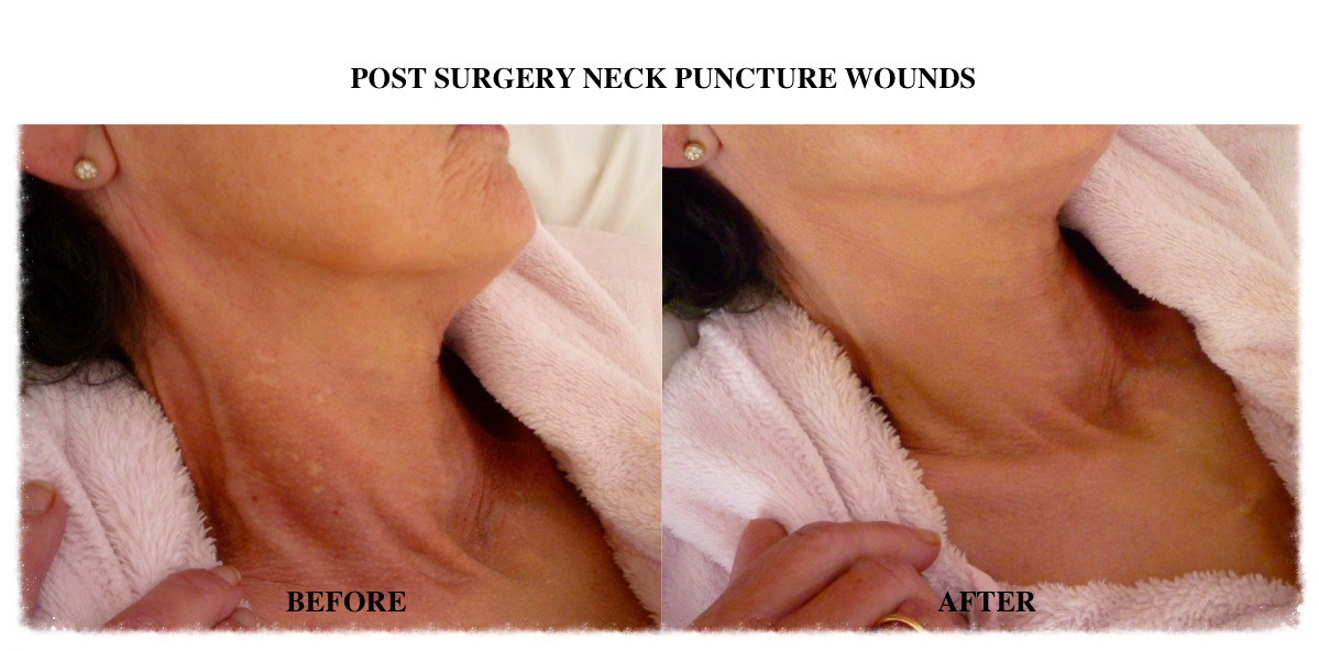Skin Camouflage surgical neck scars