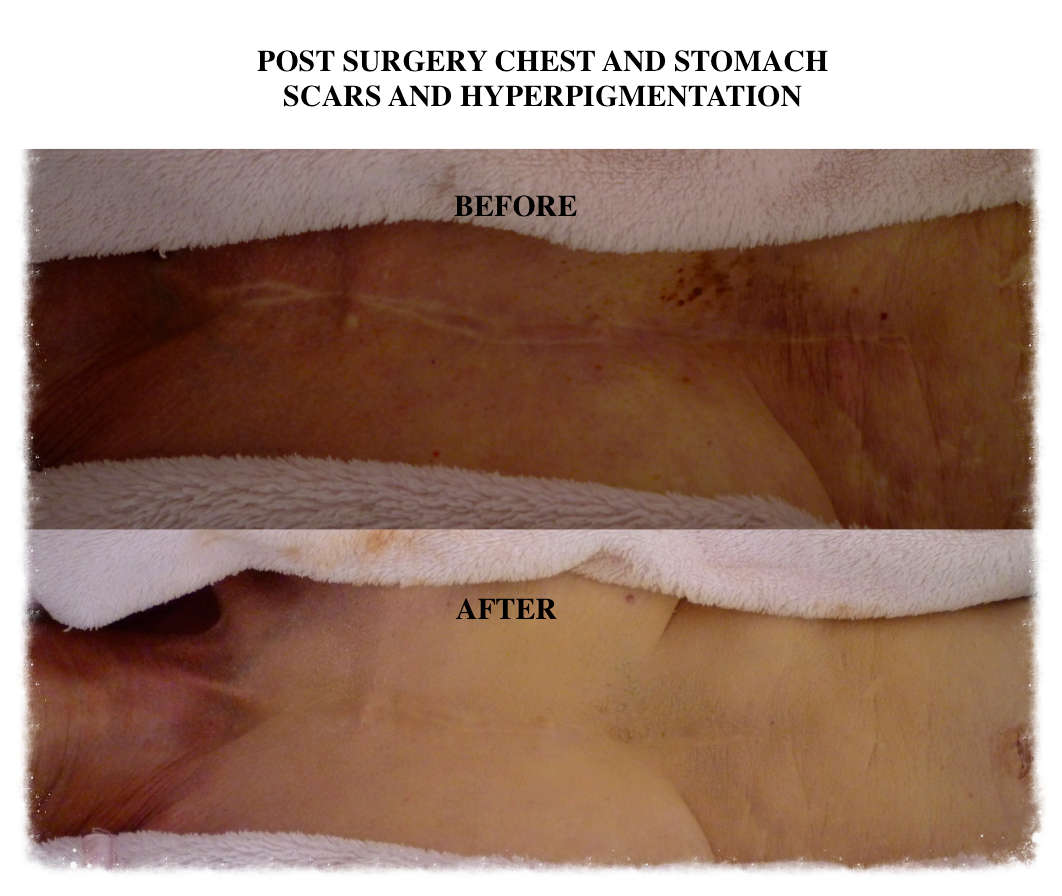 Skin Camouflage post surgery scars and hyper pigmentation