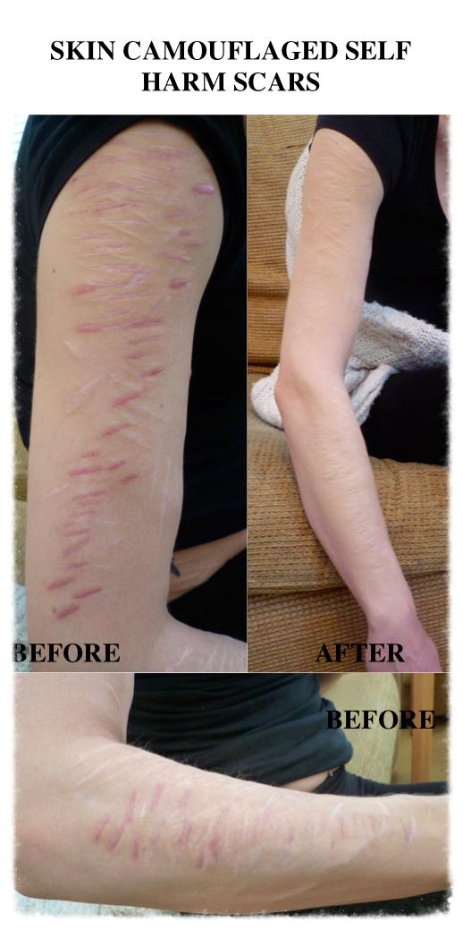 Skin Camouflage arm self harm scars