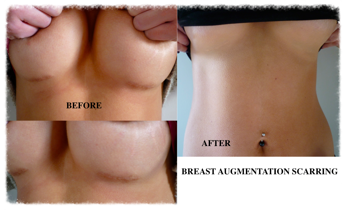 Skin Camouflage breast augmentation scars
