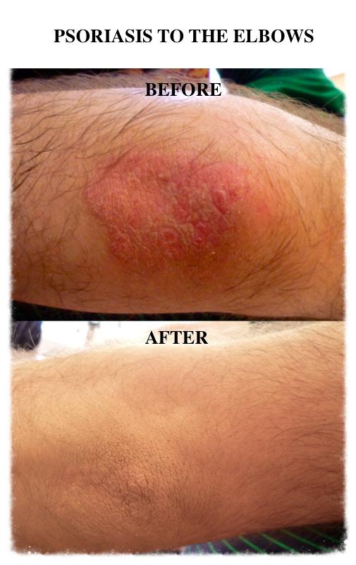 Skin Camouflage psoriasis elbows