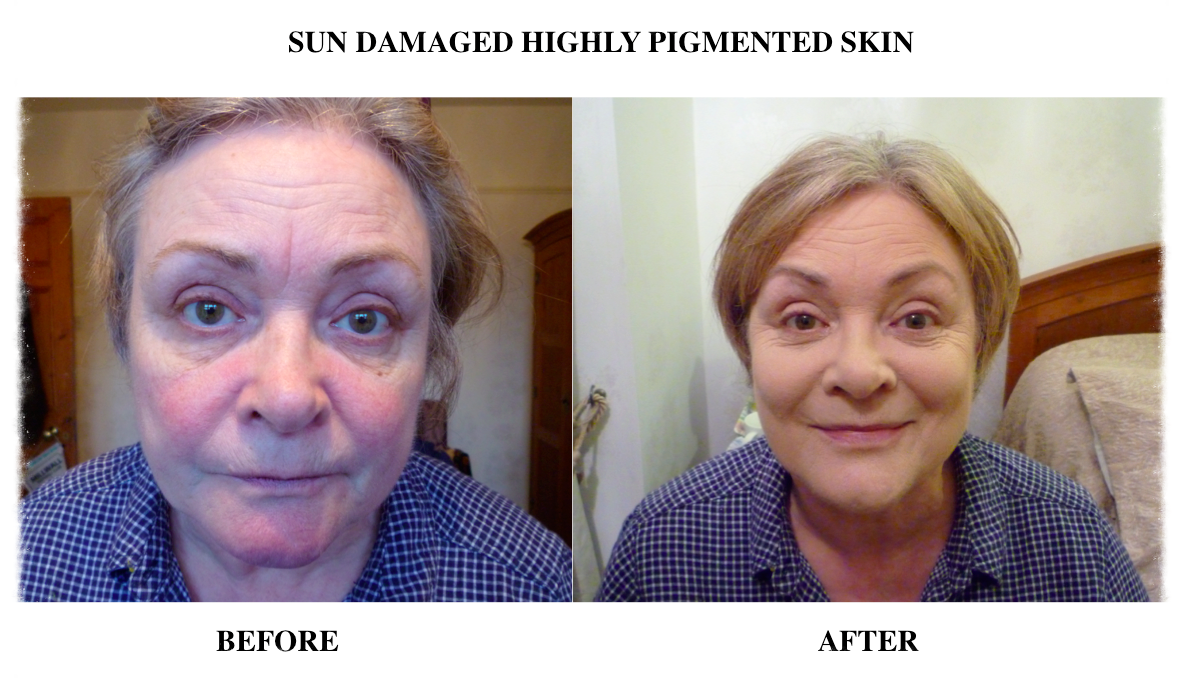 Skin Camouflage sun damage, highly pigmented skin