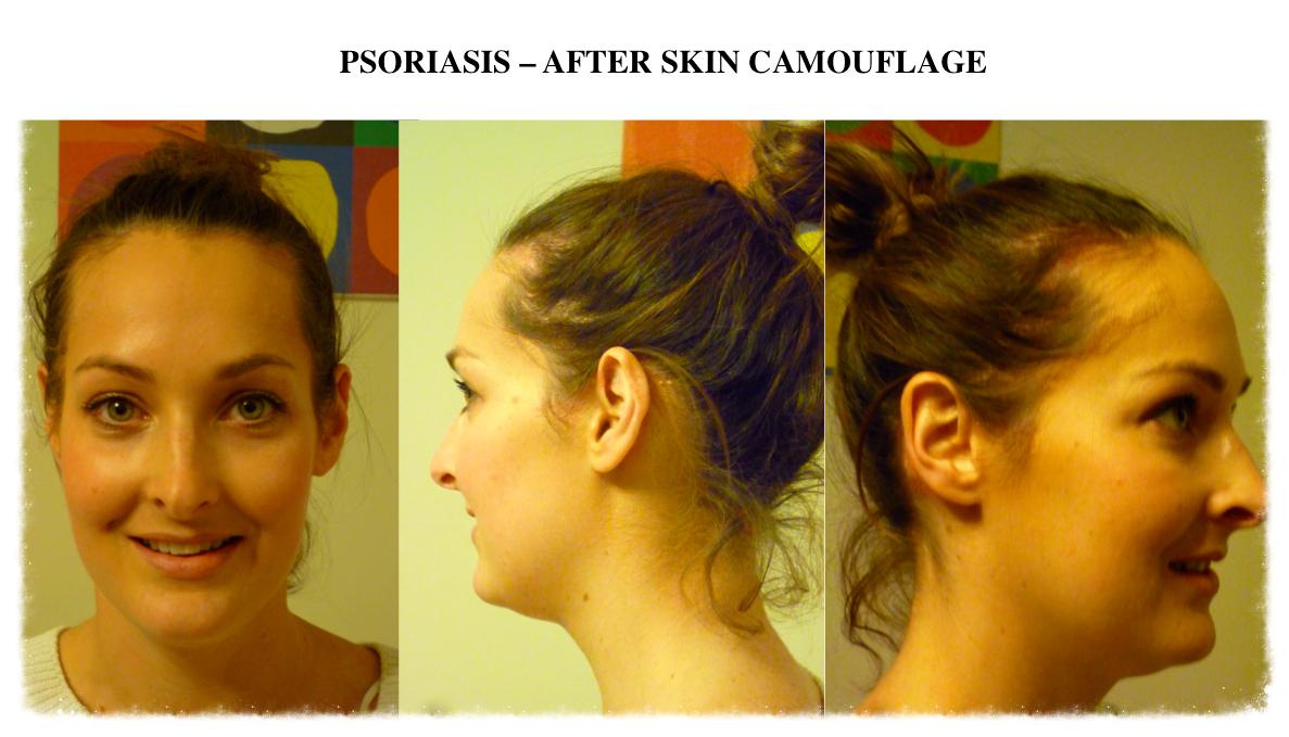 Skin Camouflage facial psoriasis