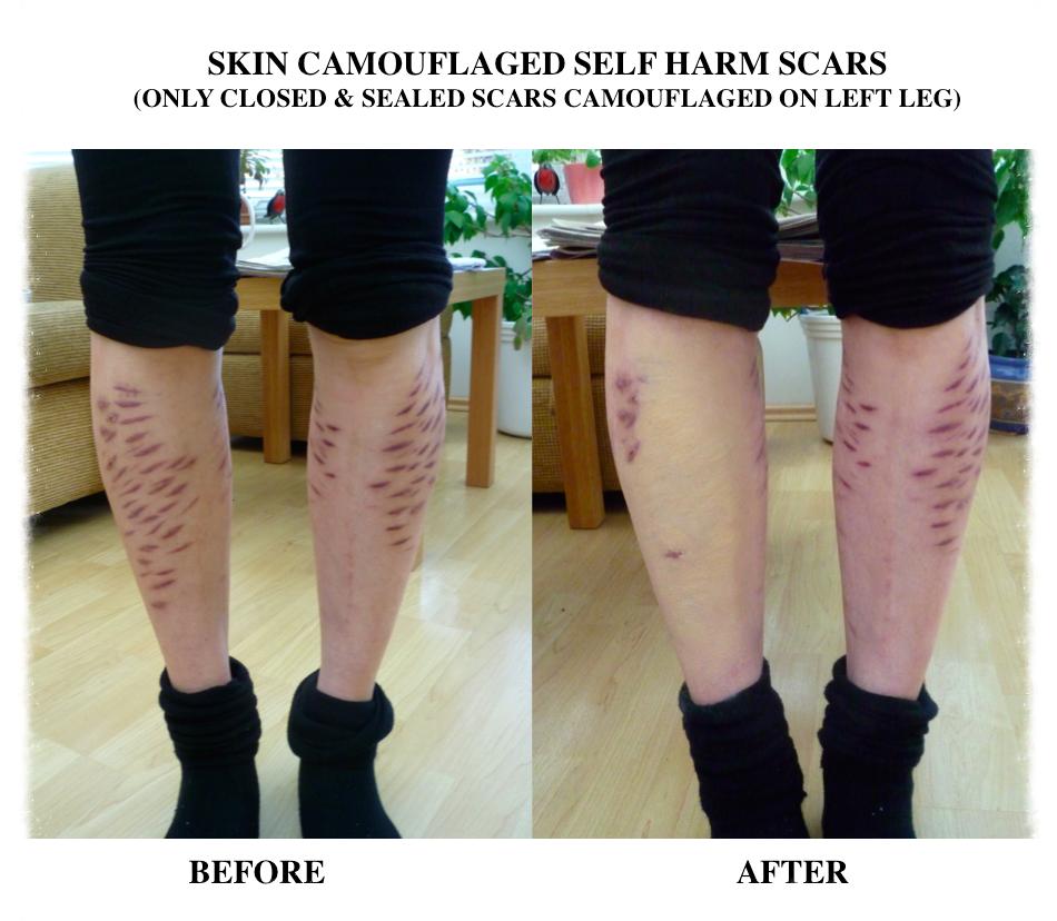 Skin Camouflage legs self harm scars