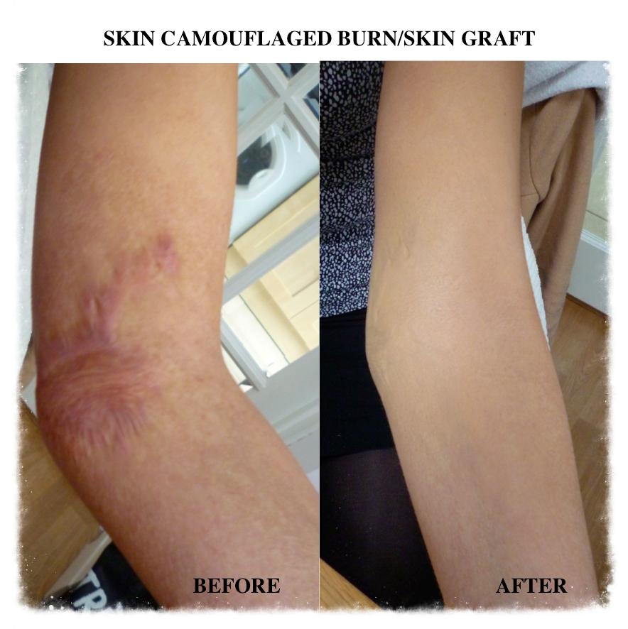 Skin Camouflage burn and skin graft