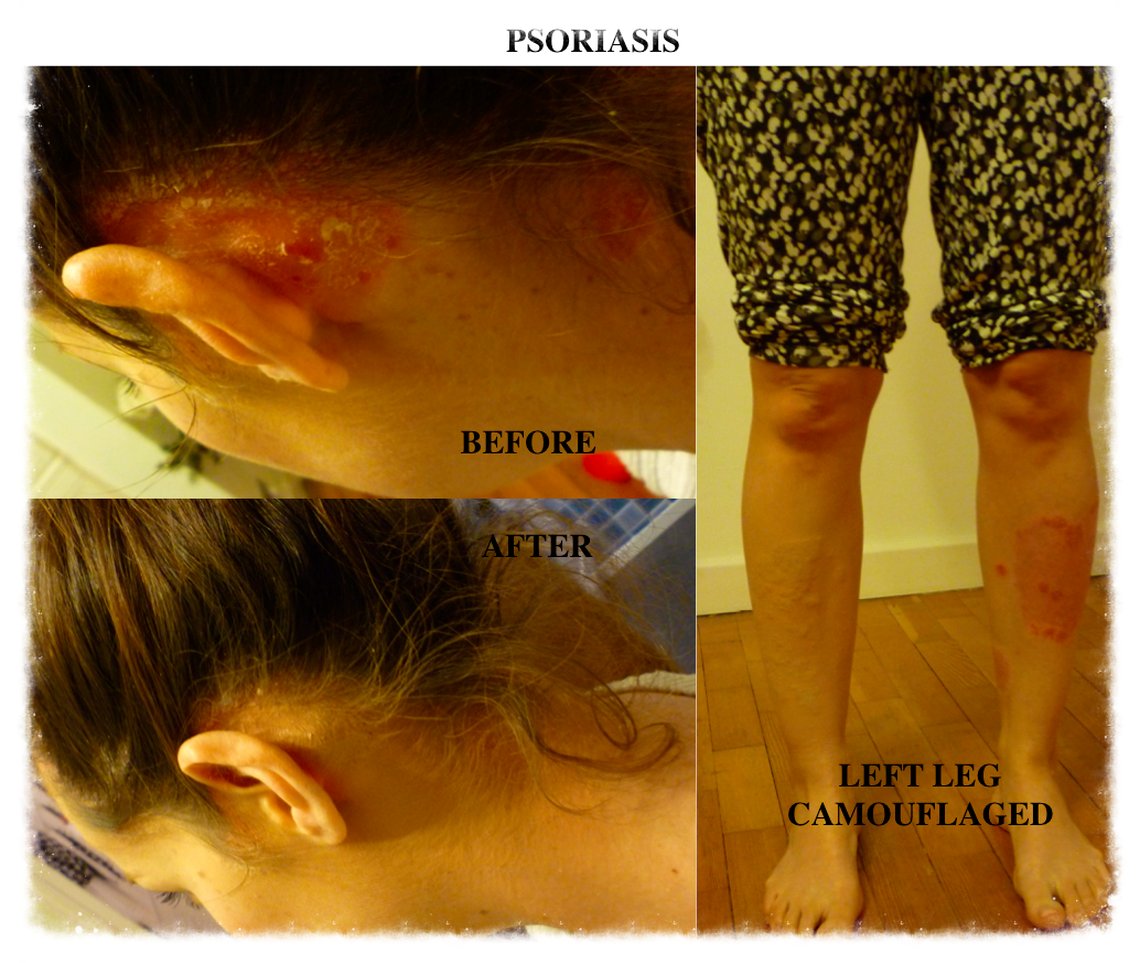 Skin Camouflage leg and behind ear psoriasis