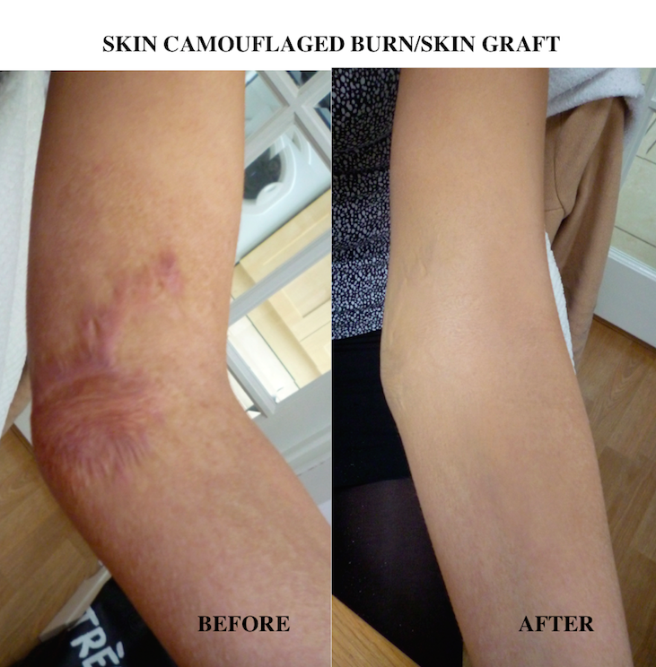 How To Improve Your Scars Charlotte Trendell