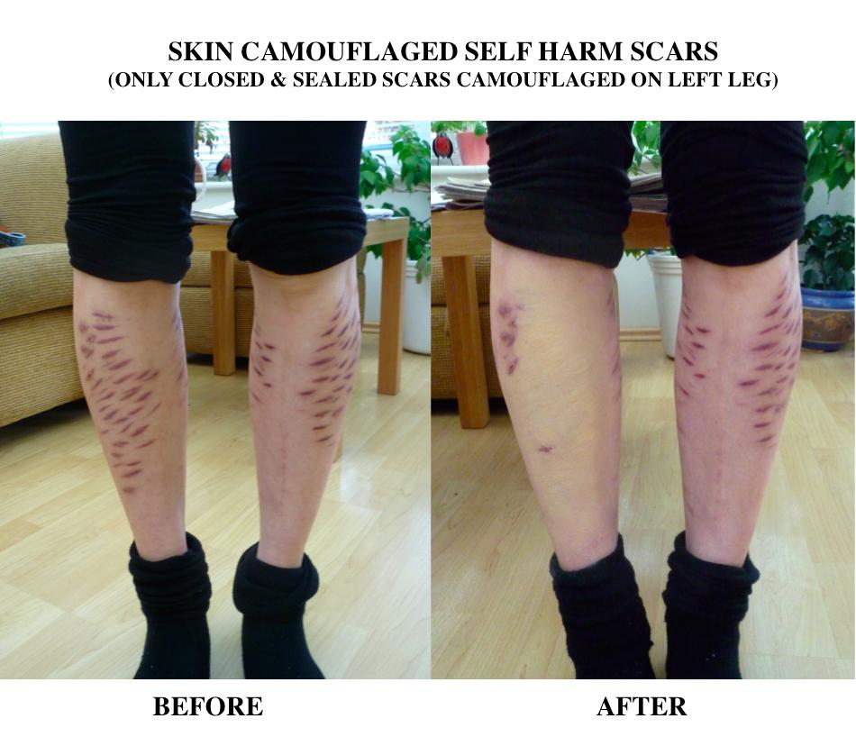 Skin Camouflage Aids Self Harm Charlotte Trendell