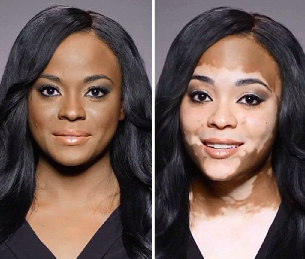 Why Is Vitiligo So Hot Right Now