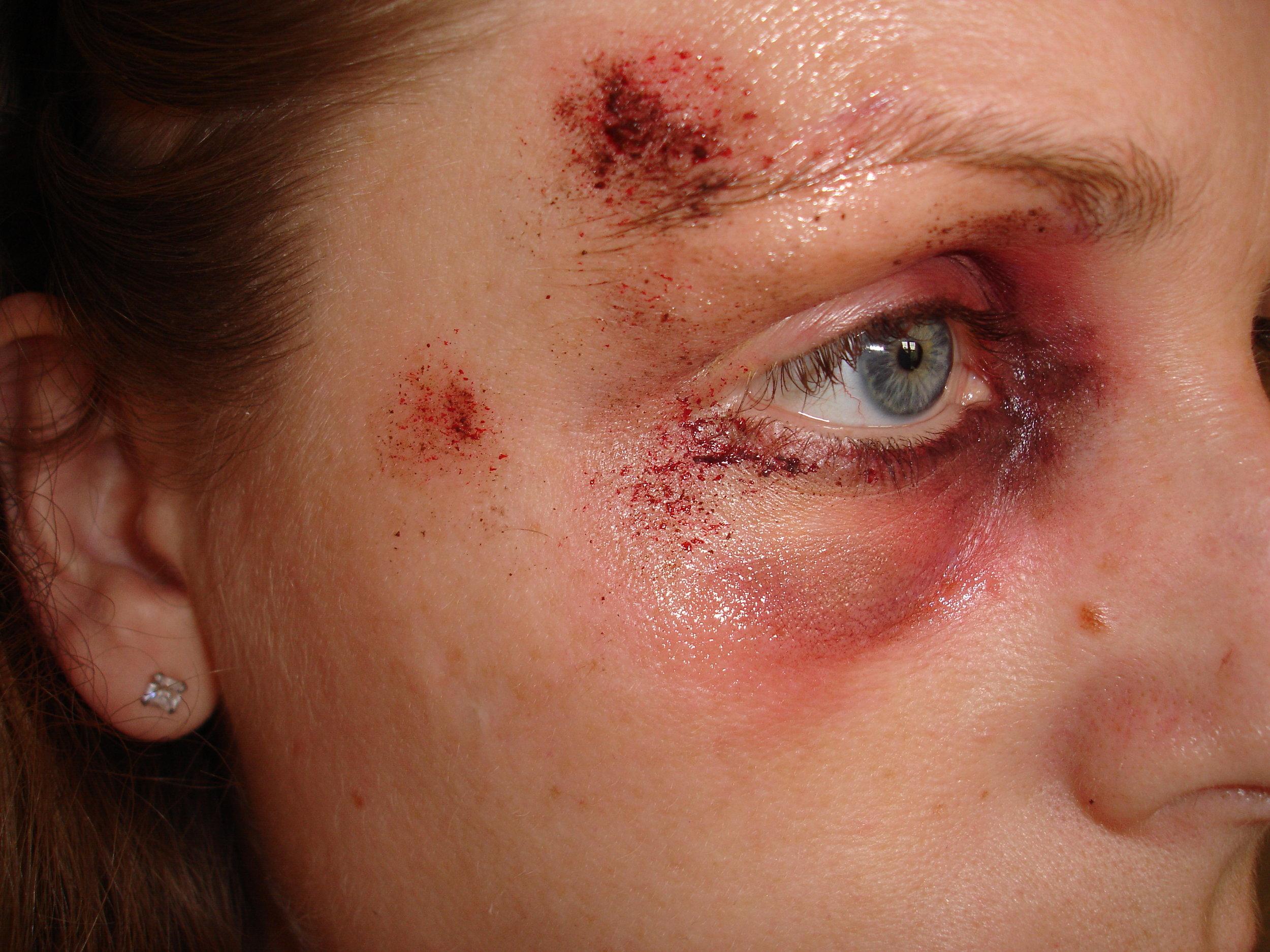black eye practice 009.JPG