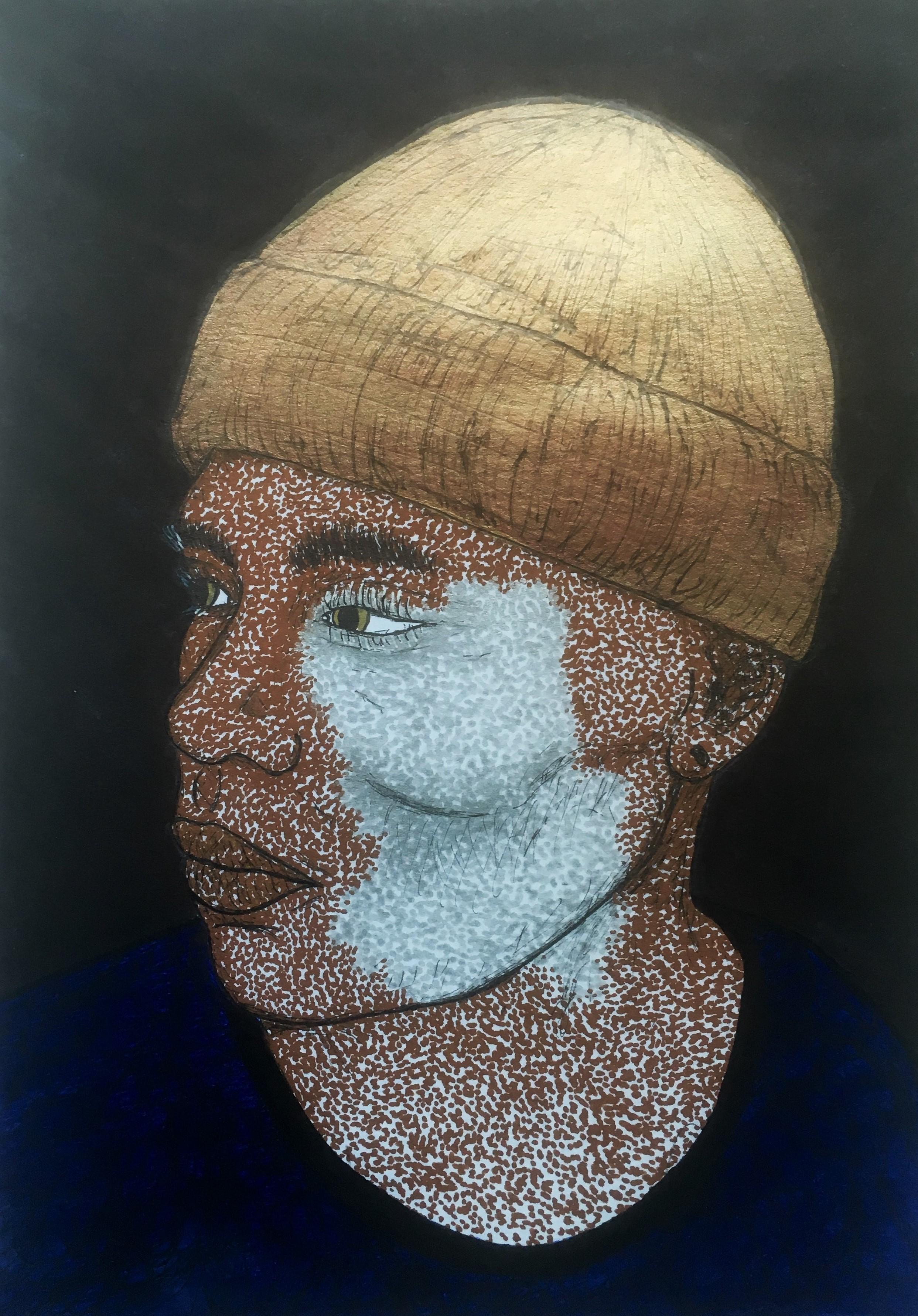 BBB vitiligo02.jpg