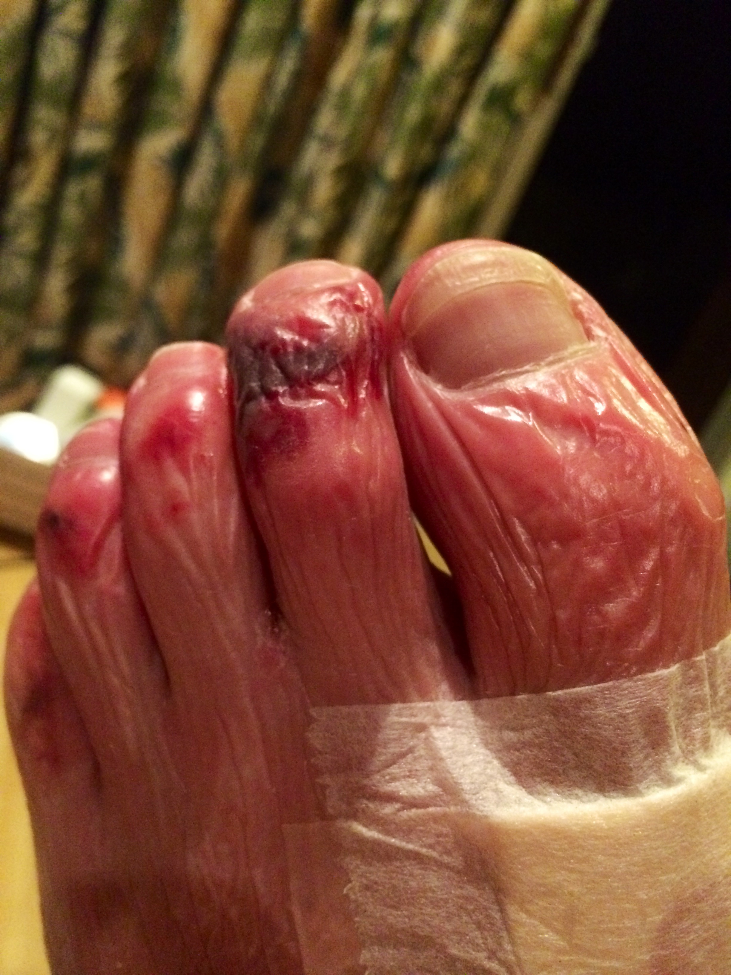 Wrinkled after swelling like a balloon