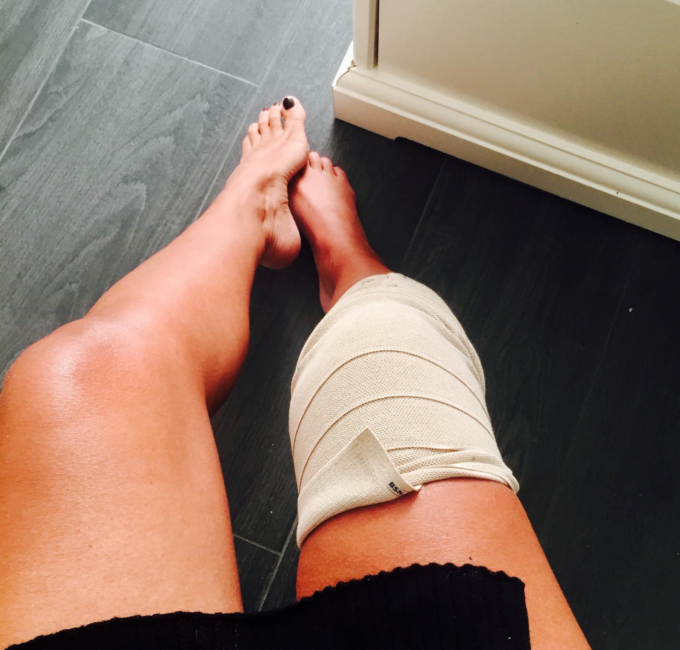 Jeg kan ikke trø ned på mitt høyre ben, så jeg suser mellom soverom og bad på en kontorsykkel med hjul. Høyre kne er blitt bandasjert.