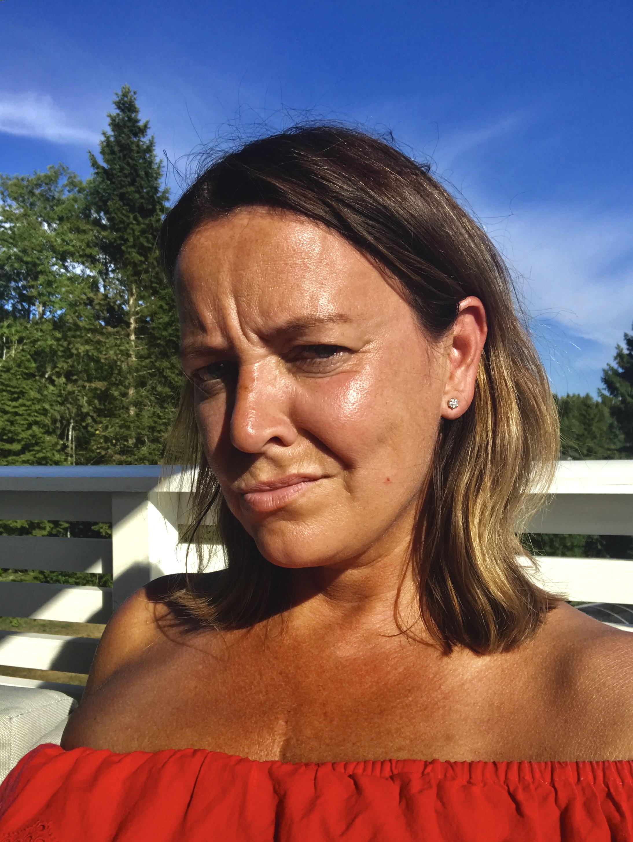 Det er nok nå, NAV. Frustrert og ørlite granne sint i sommervarmen. Arr etter hjerteoperasjonen er å skimte.