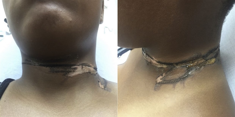 neck-burn-charger-today-main-190730_9f709d3f1a934ed9de77b935fb4a139a.fit-1240w.jpg