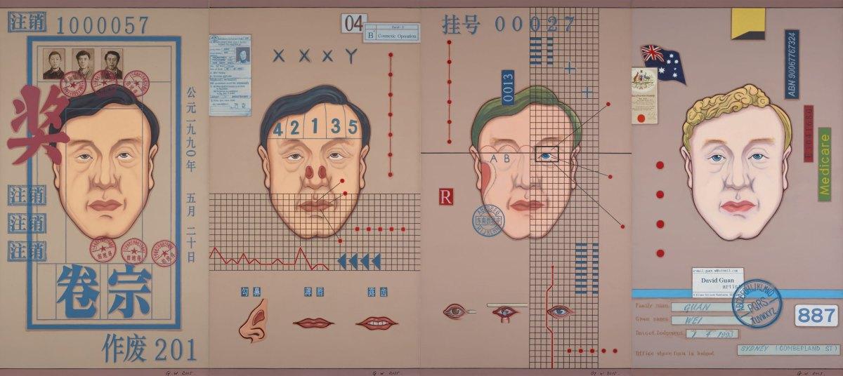 Guan Wei - Plastic surgery