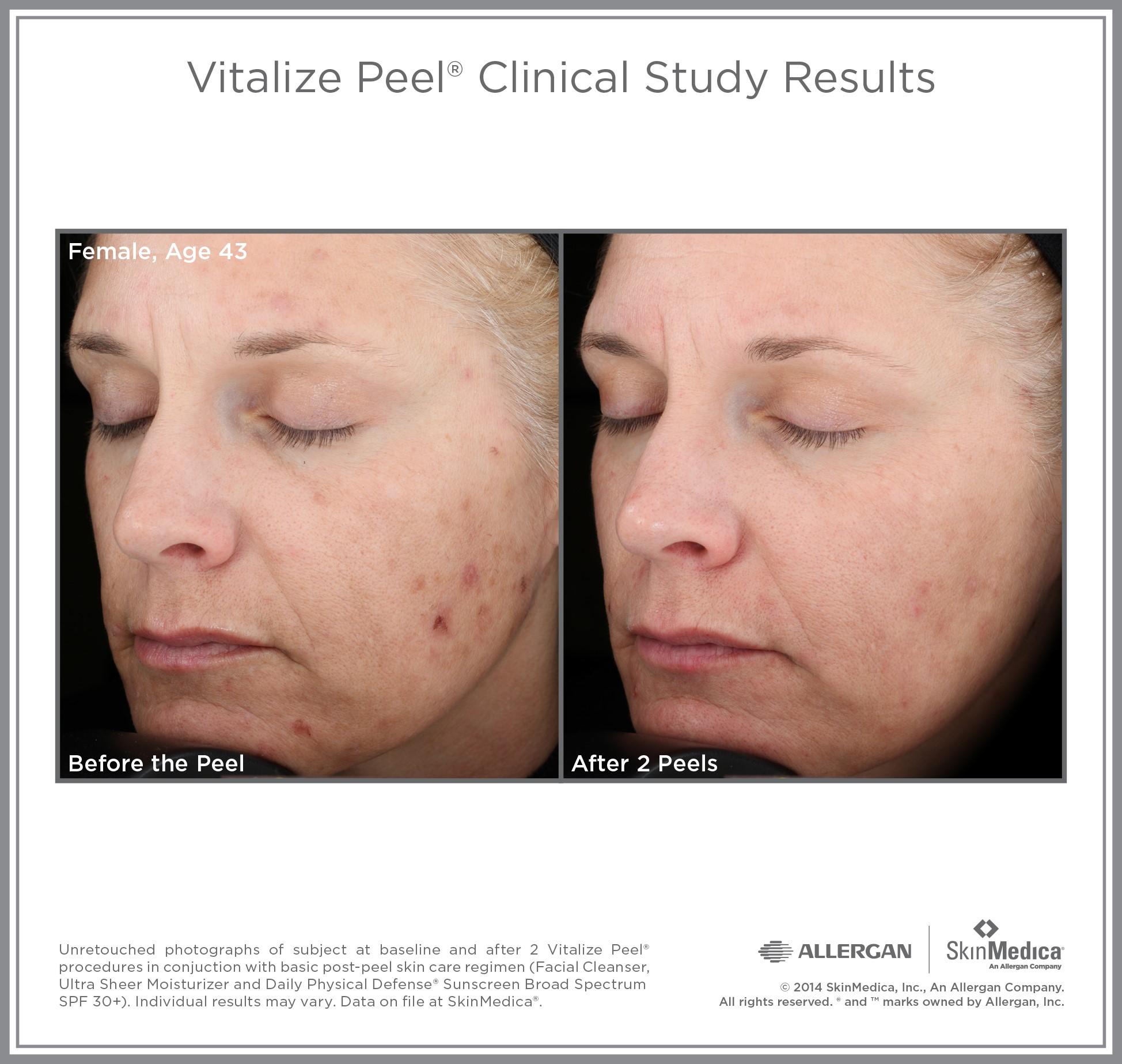 Vit_Peel_CS_Female_Age43.jpg