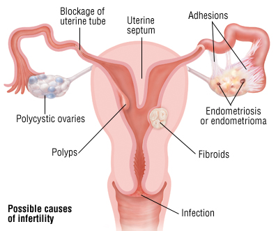 diagram possible causes of infertility.jpg