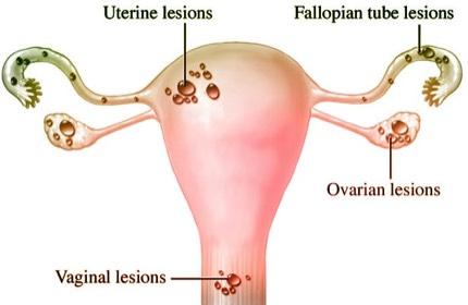 endometriosis menstruation.jpg