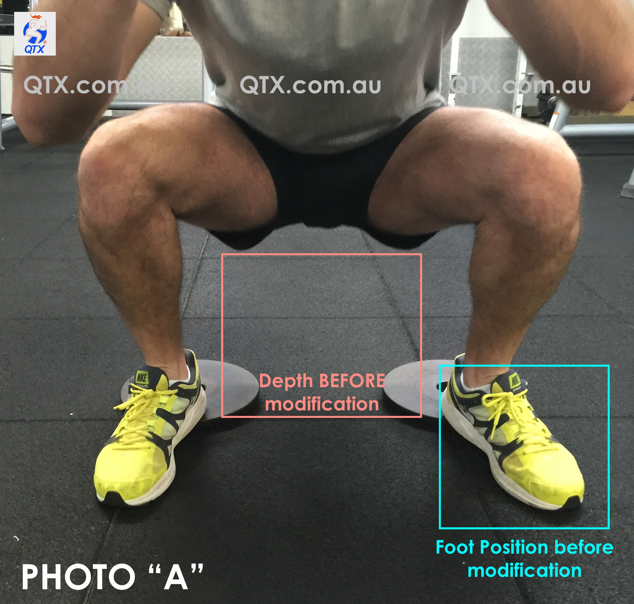 Above, A client is trying to achieve his deepest squat while keeping the natural curvature of his spine as neutral as possible. Squatting any lower than that would provoke a wink or posterior tilt of his pelvis and ache in his left knee. Both issues can be highly dangerous if the movement is intended with a barbell or any other sort of external resistance.