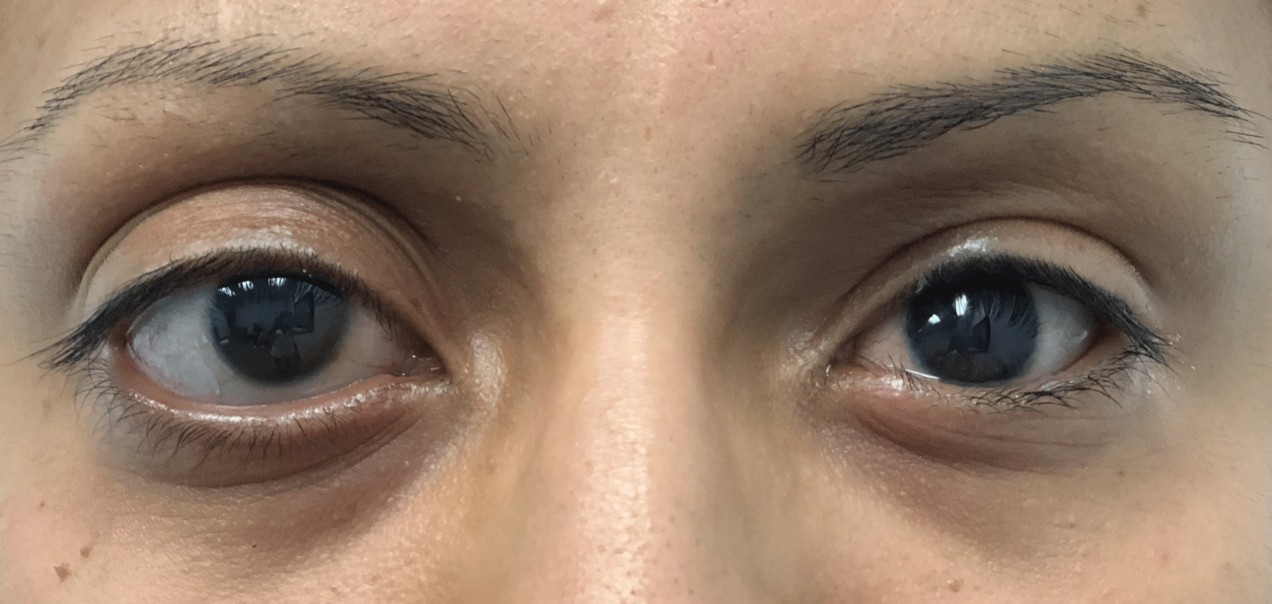The same patient wearing a custom fitted, custom painted prosthetic eye.