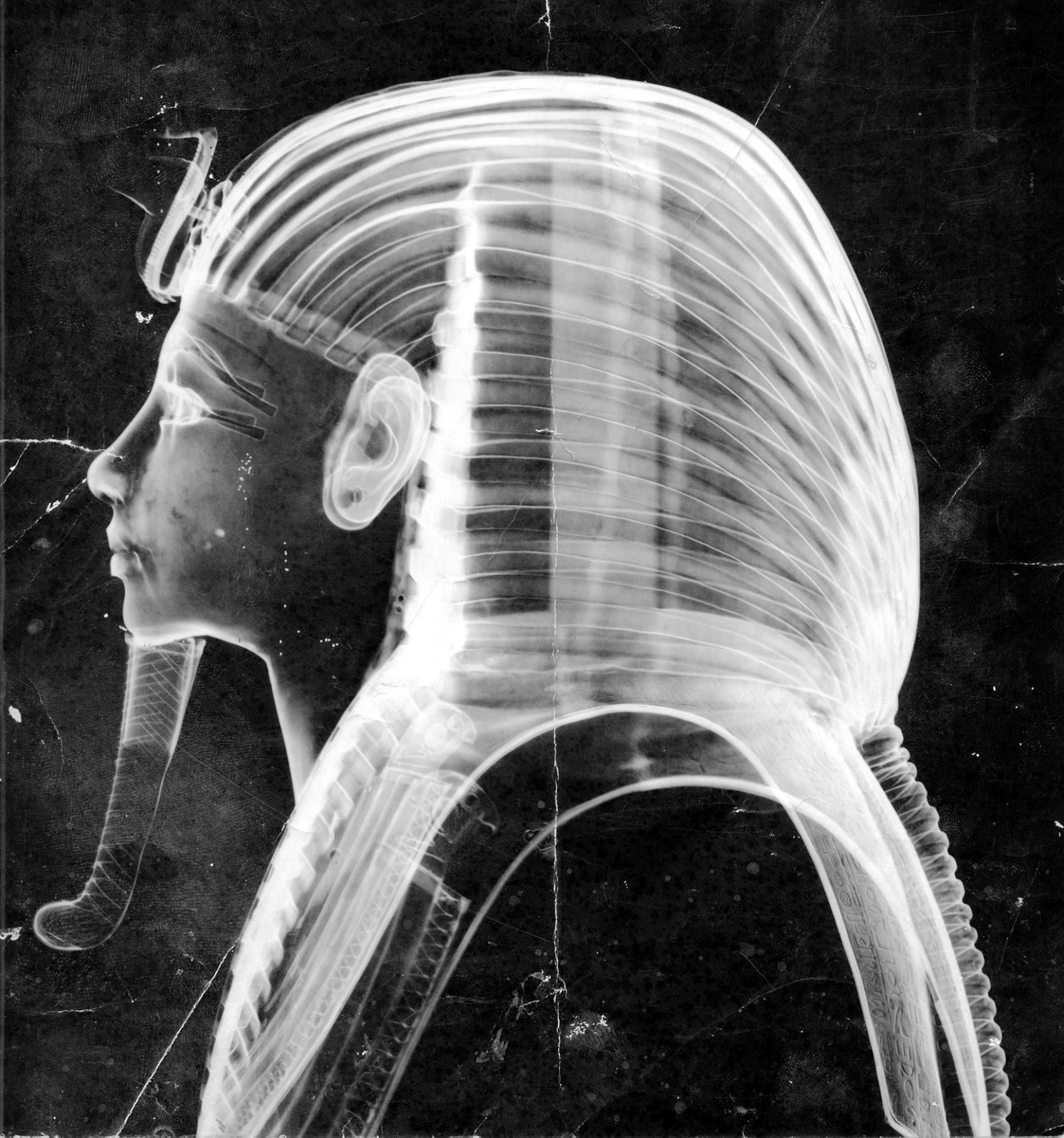 X-Ray 1960s 1B - Photo courtesy of Francis Amin.png