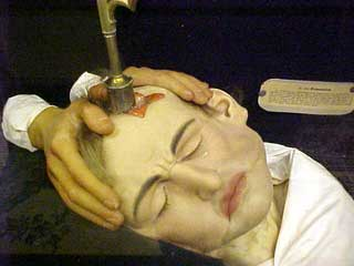 WEIRDEST AND CRAZIEST PSYCHOTHERAPIES...TREPANNING
